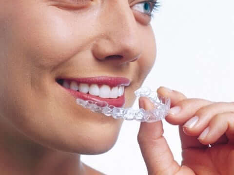 Invisalign Invisible Orthodontics