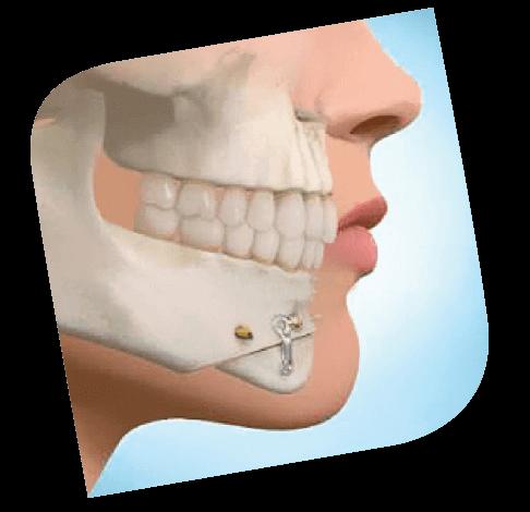 cirugia_maxilofacial_diagrama