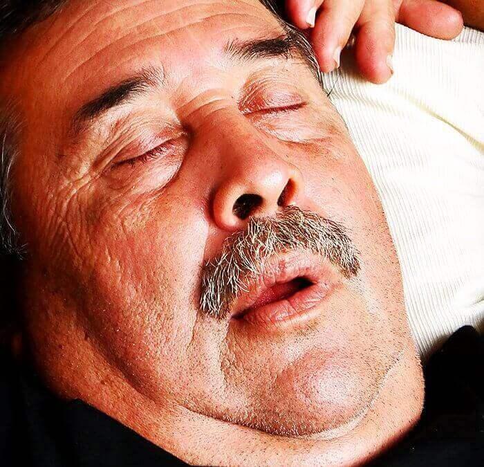 How Your Orthodontist Can Help With Sleep Apnea