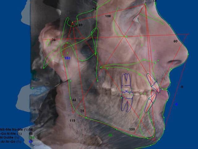 Ortodoncistas en Acapulco